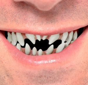 Demon Teeth 2pc