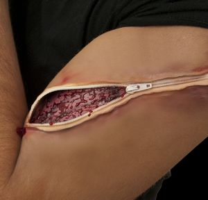 Zipper Wound Prosthetic